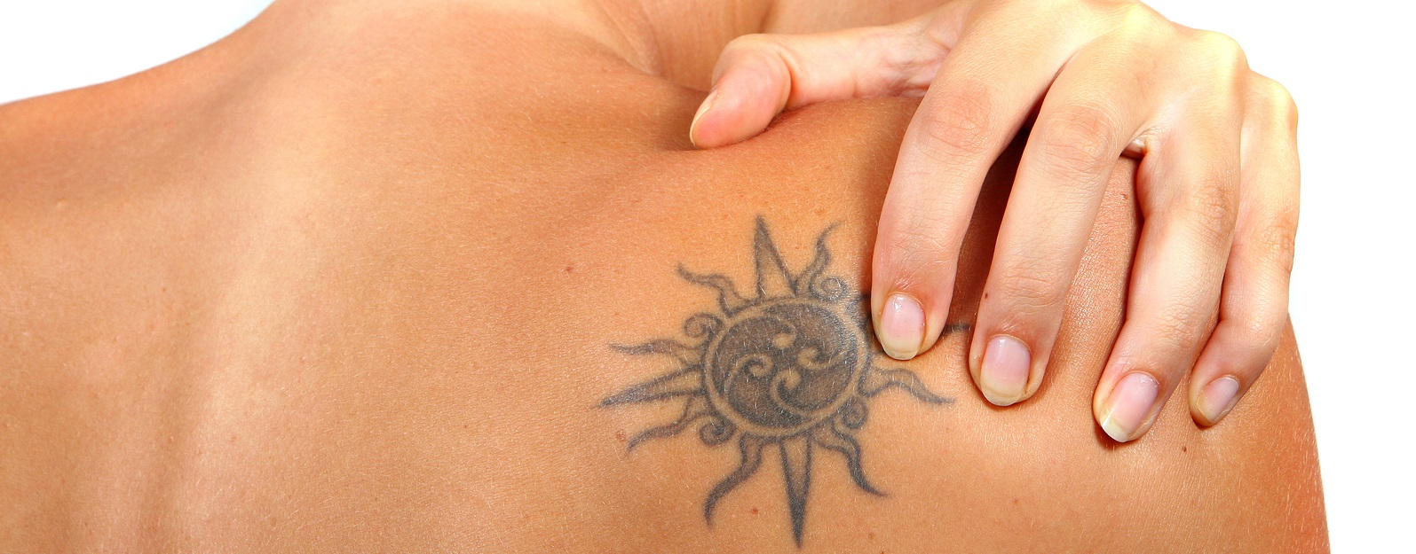 Laser Tattoo Removal Fresno   First Health Medical